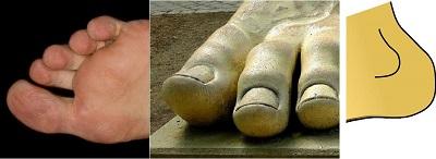 足の爪、指の間、かかとに臭いの発生原因がある