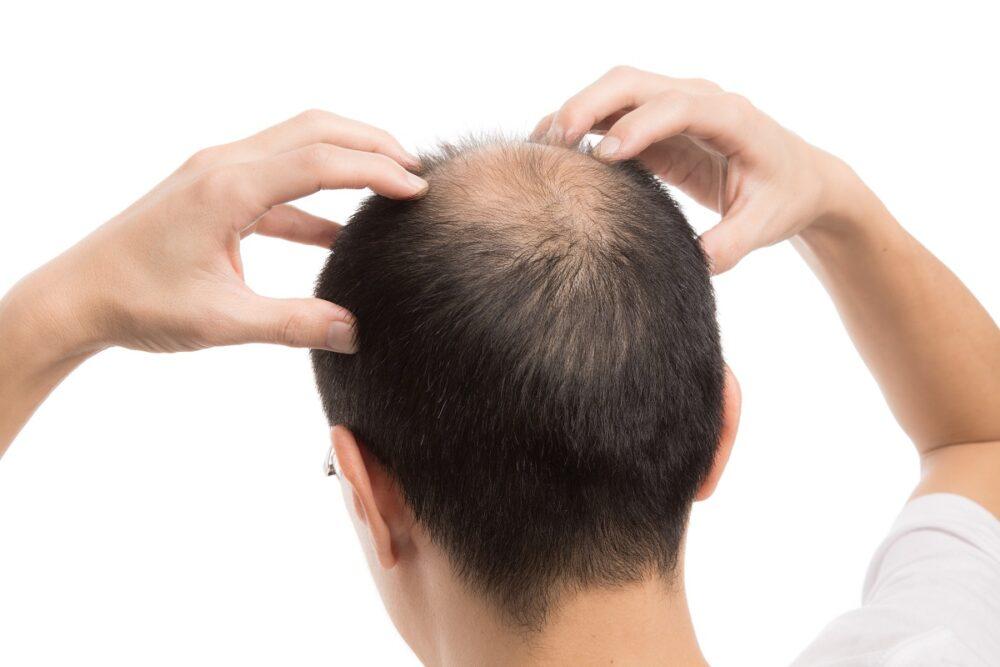 AGA治療のドクターズヘア