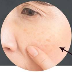 コーズシックスホワイトリペアの口コミ肝斑ゾーン